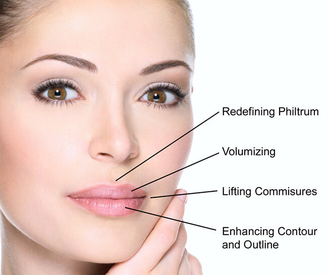 Dermal Fillers for Lips - Medicine of Cosmetics