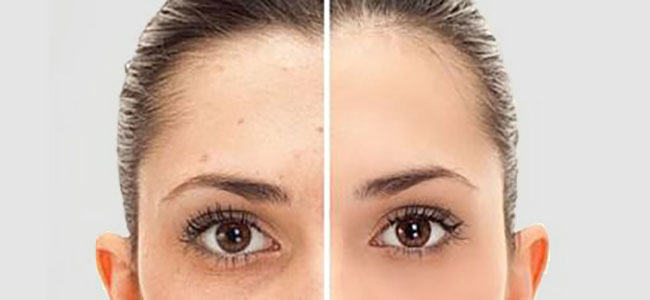 Laser Pigmentation Treatment Adelaide