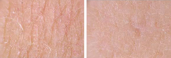 Platelet Rich Plasma PRP Skin Before & After Treatment