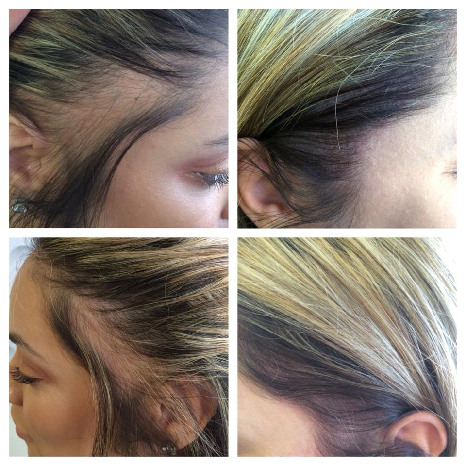Scalp tattoo for hair loss medicine of cosmetics adelaide scalp female web pmusecretfo Image collections