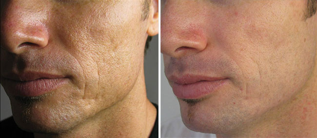 Skin Needling for Men Before & After