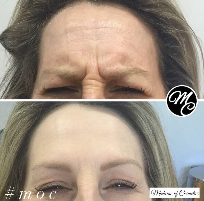 Medicine of Cosmetics - Anti Wrinkle Injections
