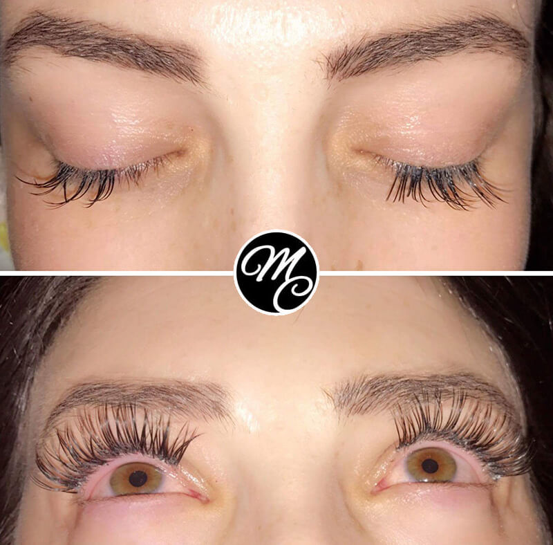 Medicine of Cosmetics - Lash Extensions - Before & After