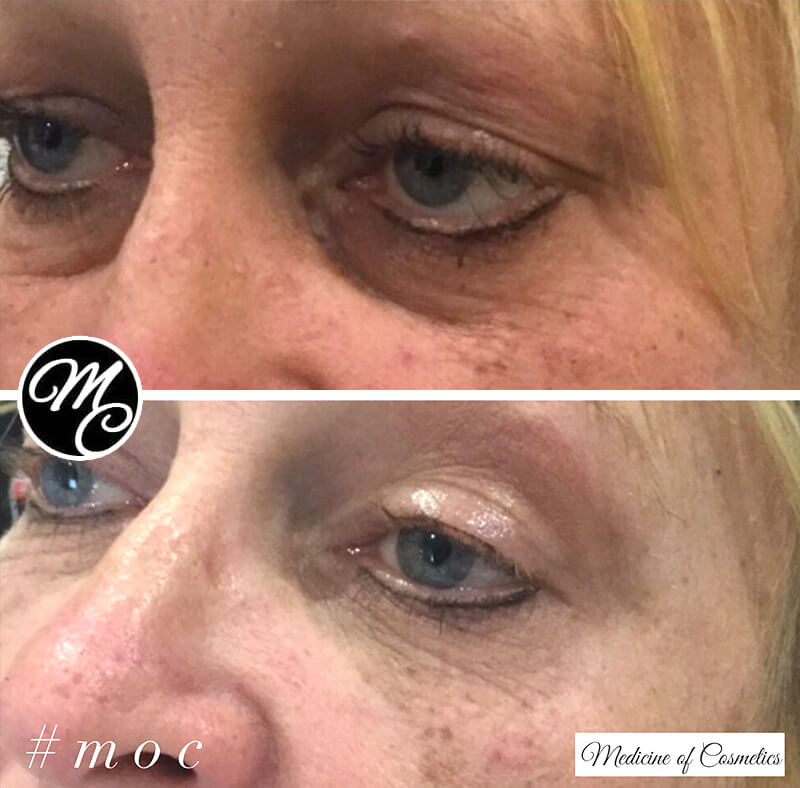 Medicine of Cosmetics - Tear-Troughts Before and After