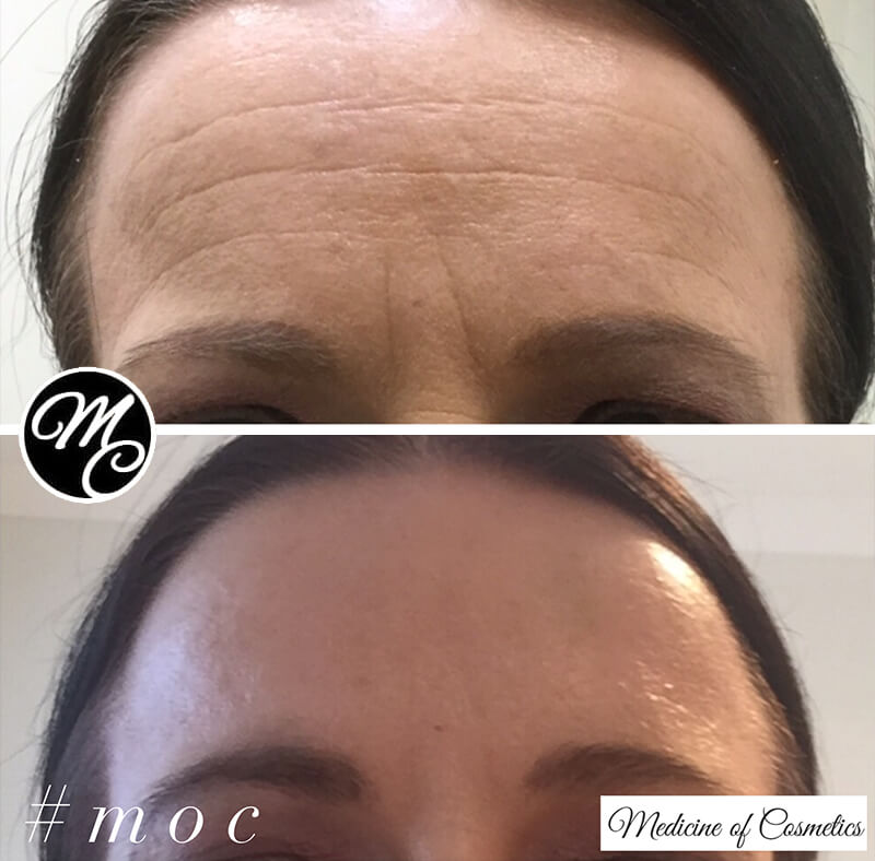 Medicines of Cosmetics - Anti Wrinkle Injections