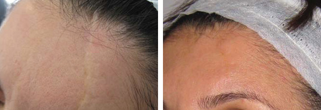 Platelet Rich Plasma PRP pre and post scars