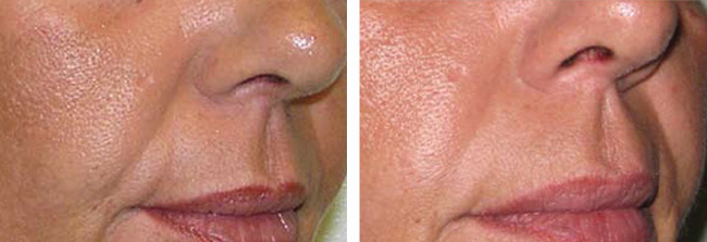 Platelet Rich Plasma PRP volume increase in nasolabial folds