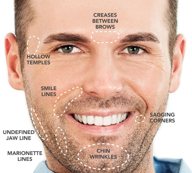 Dermal Fillers Facial Map for Men