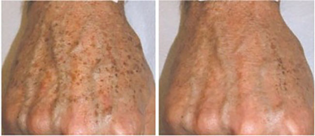 Laser Pigmentation Treatment for Men Before and After