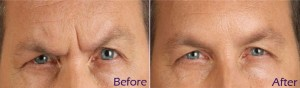 Anti Wrinkle Treatment Before & After